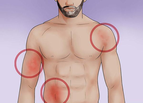 doenças da chikungunya, dengue e zika